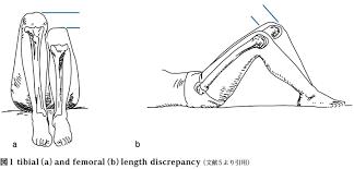 左右の足の長さの違い